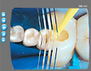 English Multimedia Page Image of Video GRADIA DIRECT Dentrek Tutorial 2