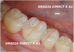 GRADIA DIRECT X Clinical Case 10