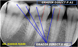 GRADIA DIRECT X Clinical Case 13