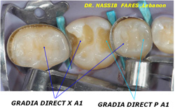 GRADIA DIRECT X Clinical Case 7