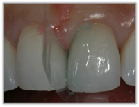 KALORE Clinical Case Images from Okuda 23